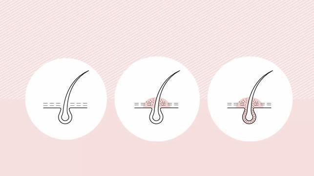 怎么样才能选到好的真人发假发?选择真人发假发的技巧!